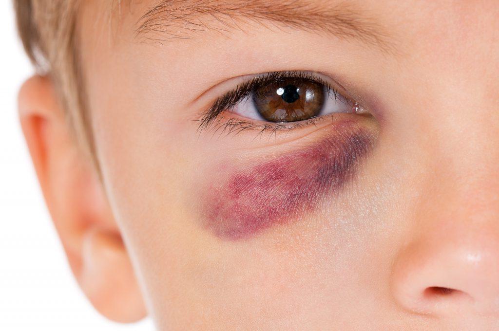 Criança com o olho roxo
