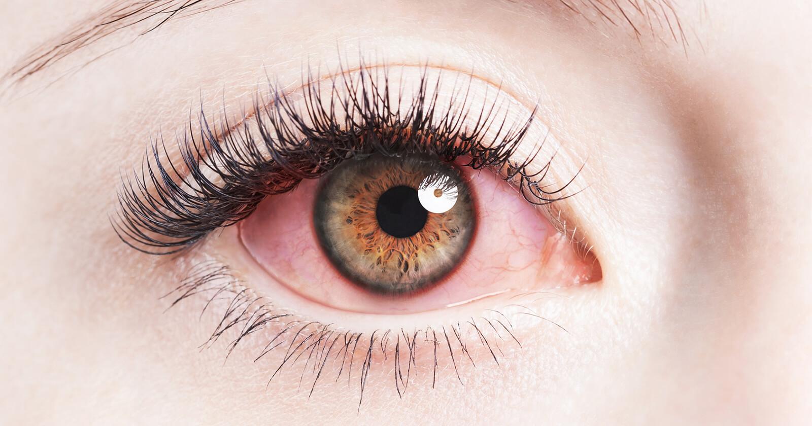 Close em olho vermelho por conta de alergia
